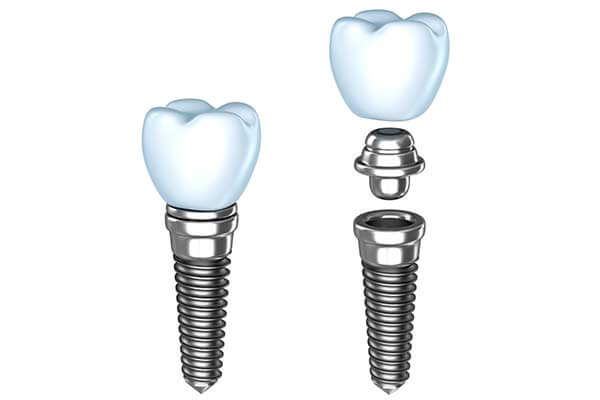Dental implants illustration